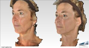 Infini RF skin tightening of face