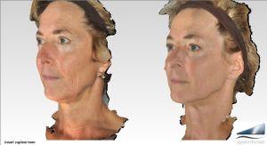 Infini RF skin tightening of face