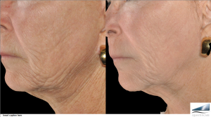 Infini treatment for neck and lower face wrinkles.