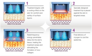 Skin surface is cooled and RF energy is pumped through the skin surface to heat dermis is UNPREDICTABLE manner