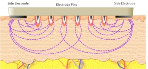 Fractora electrodes are not insulated and treatment is not fractional.
