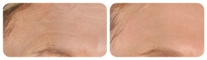 Infini treatment of the forehead