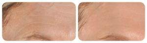 Infini treatment of the forehead