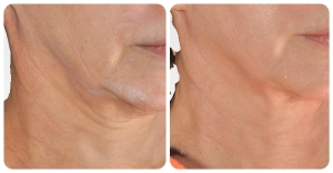 Before and after one treatment with the Infini.  After is 8 weeks after the treatment.