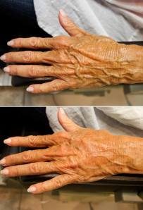 Before and after hand volumization with Radiesse.