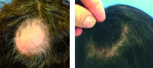 PRP was injected for alopecia areata.  From Prime journal.  One treatment