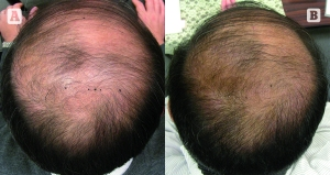 PRP was injected for hair regeneration, from Prime Journal article