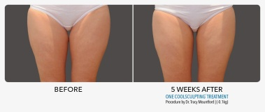 Inner Thigh Gap from Coolsculpting