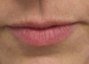 Dr. Weiner performing Lip Enhancement with Restylane Silk