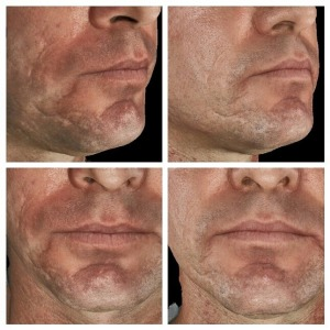 Dr. Weiner: Acne Scarring after 2 Infini treatments.