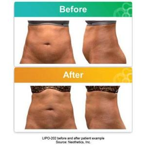 Lipo 202 for abdomenal fat reduction with injections.