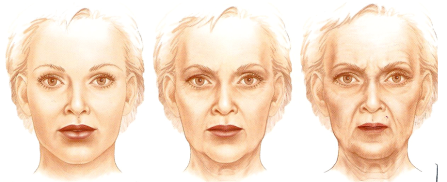 Aging temples changes shape of face